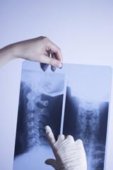 Medical xray spine neck scan