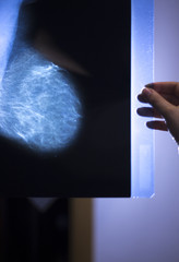 Xray breast scan mammogram
