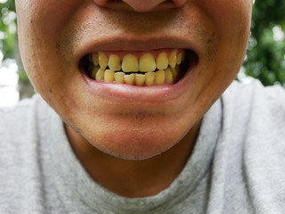 Yellow teeth and decayed tooth from smoke every day.