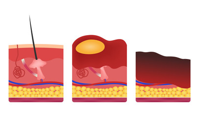 step of burn . Normal to serious burn skin . vector and icon
