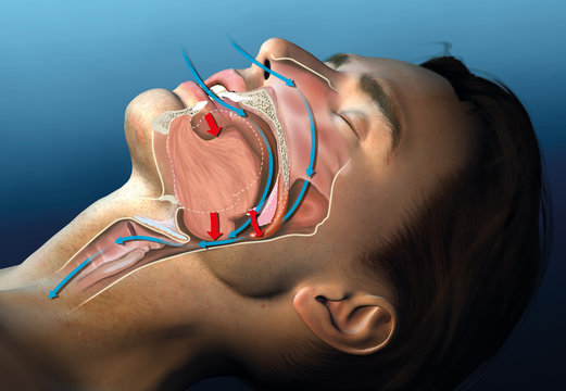 Snoring, medical illustration