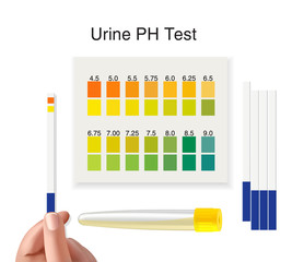 Check a urine sample out of the tube. Urine PH test strip in doctor's hand. Vector illustration