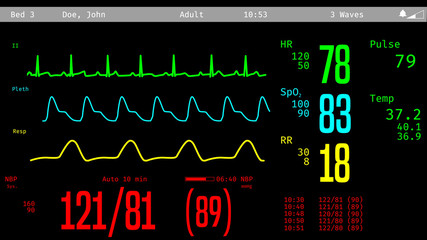 Monitoring of patient's condition, vital signs on ICU monitor in hospital. 3D illustration