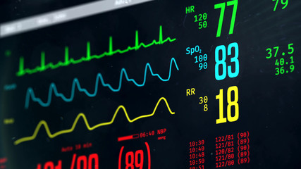 Normal vital signs on bedside ICU monitor, patient stable after heart surgery. 3D illustration