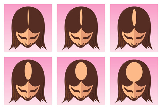 vector medical illustration of the stages of female alopecia or hair loss