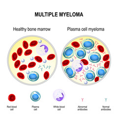 Multiple myeloma. plasma cell myeloma