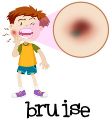 Magnified boy with bruise