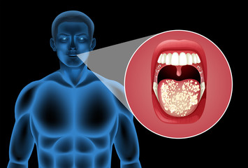 A Human Vector of Mouth