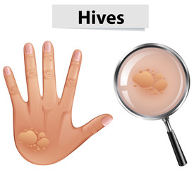 A Vector of Hives on Human Skin