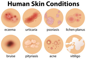 A Set of Human Skin Conditions