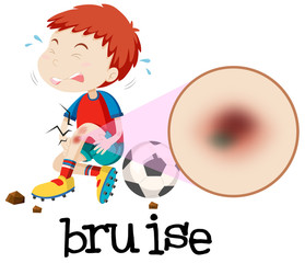 A Young Boy Habing Bruise