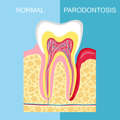 Procurar fotos consoante alveolar vector illustration of human tooth diagram tooth structure illustration ccuart Gallery
