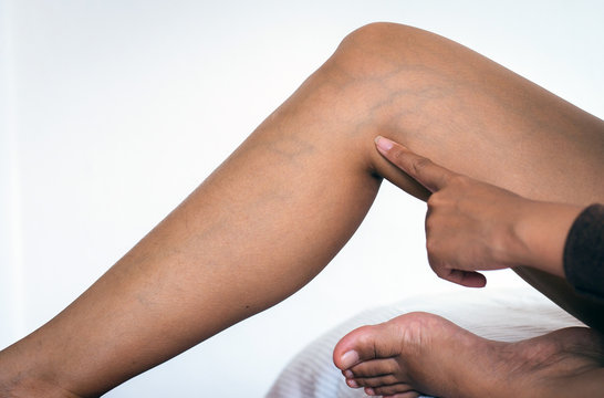 Concept skin health,Close up of varicose veins on the woman legs