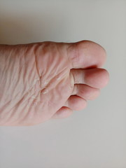 Dry Skin under the feet.close-up skin.
