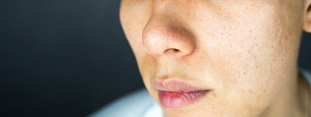 Acne pimples scar on face skin issues, close up
