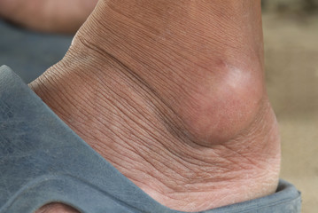 Close-up gout on a foot
