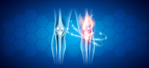 Joint problems and treatment abstract scientific background