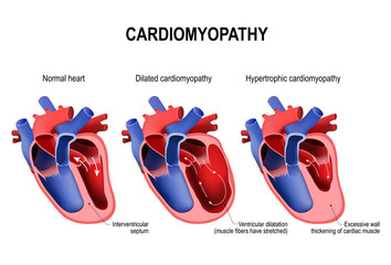 hypertrophic cardiomyopathy, dilated cardiomyopathy and healthy heart