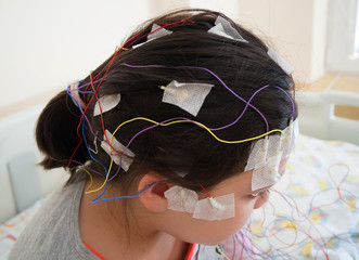 Girl with EEG electrodes attached to her head