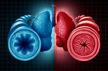 Asthma Health Diagnosis