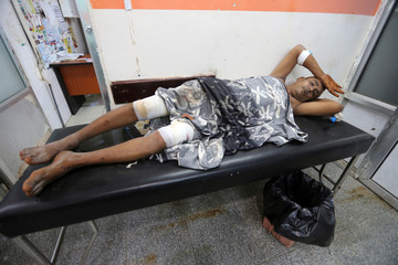 Man lies on a hospital stretcher after he was inured by clashes between government forces and Houthi fighters near Hodeidah
