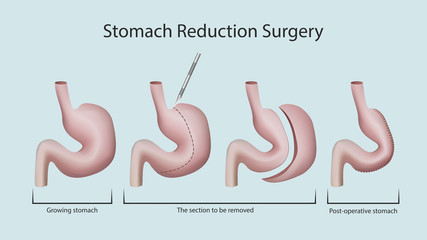 Stomach reduction surgery
