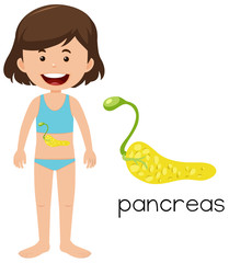 Girl with placement of pancreas