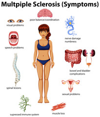 An Education Poster of Multiple Sclerosis