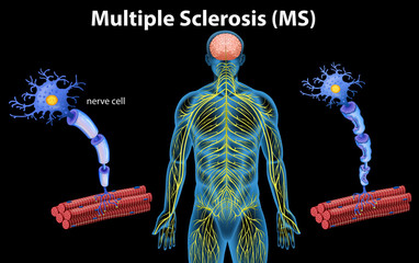 Human Anatomy of Multiple Sclerosis
