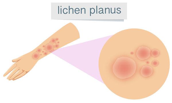 Human Skin with Lichen Planus