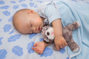 Sleeping Asian baby with red spot from mosquito bite on a cheek and hand, Cute 12 months old toddler boy taking a nap while holding dog toy on the bed