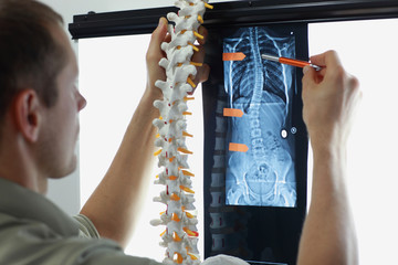 Professional with  model  of spine watching image of chest  at x-ray film viewer. Diagnosis,treatment planning.
