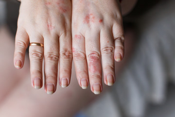 A picture of female hands one swollen because of a wasp sting. Red allergy spots on skin. Health concept