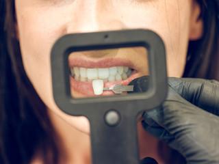 Dentist picking color of denture