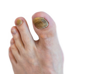 Close up image of foot toe nail suffering from fungus infection isolated on white background.