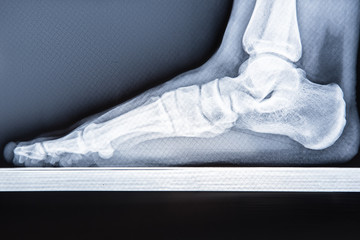 X-ray human foot with flatfoot