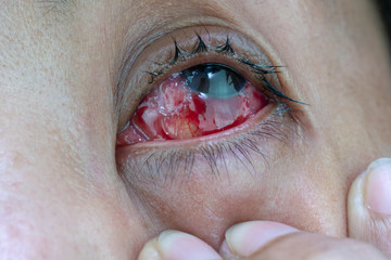 The eyes of women after pterygium surgery.
