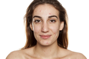 young smiling woman with problematic skin and without makeup poses on a white background