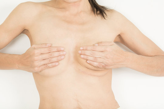 woman one breast cancer awareness  and scar from surgery