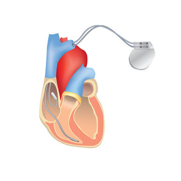 Heart pacemaker in work. Human heart anatomy with ICD