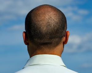 back of the balding man.