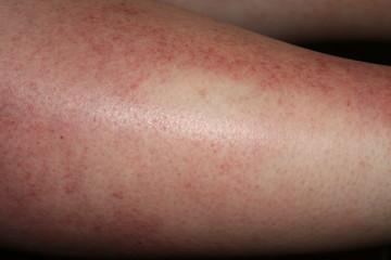 terrible sun burn on females leg that has caused sun poisoning