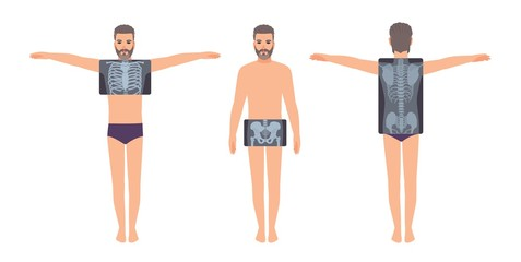 Male patient and his chest, pelvis and back radiograph isolated on white background. Bearded man and X-ray pictures of his skeletal system on monitor. Flat cartoon colorful vector illustration.