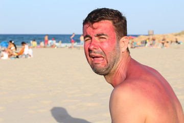 Man crying after getting wildly sunburned
