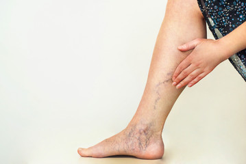 Varicose veins on the womans legs