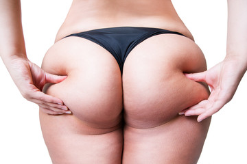 Fat female body with cellulite, overweight hips and buttocks