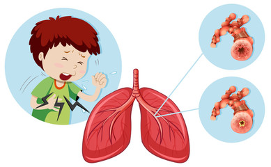 A Man Having Chronic Obstructive Pulmonary Disease