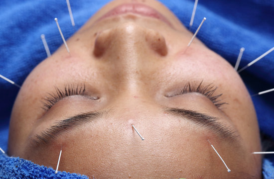 Close up Hand Perform Medical of professional acupuncture treatment