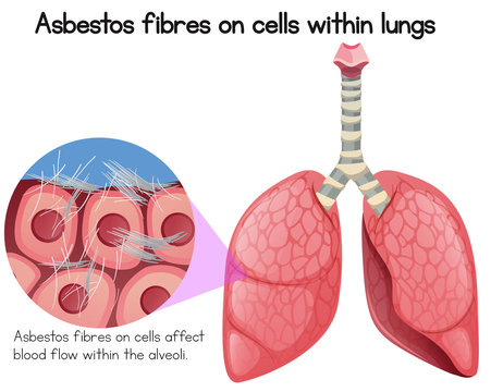 Asbestos Fibres on Cells Within Lungs