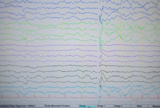 Computer monitor showing electrical activity of abnormal brain,EEG of the pediatric patients with problems in the brain.